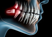 Best Clinic For Wisdom Teeth Removal in Melbourne