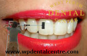 Best-Teeth Cleaning -And–Teeth Whitening -in west Perth- Dental Centre