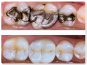 Effective White Filling Treatment at Richmond with Experienced Dentist