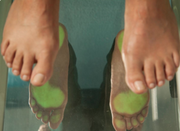 Expert Orthotic Solutions Podiatry for Foot Disorders