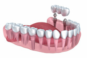 Dental Implants Dentistry in Penrith | All-on-4 Implants Dentistry