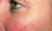 Infinity Skin Clinic: Laser Skin Resurfacing Treatment in Sydney