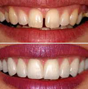 Most Effective Dental Veneers for Your Teeth