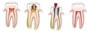 Root Canal Treatment Sydney   Cost & Treatment Procedure